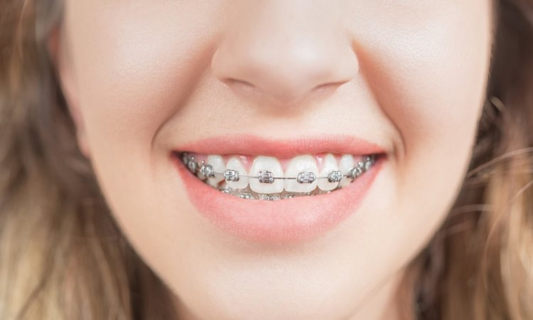 how to clean teeth with braces