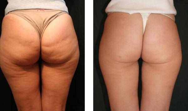 How to eliminate cellulite from thighs